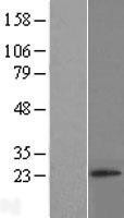 NBL1-15454 - RNF4 Lysate