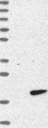 NBP1-85594 - RNF7