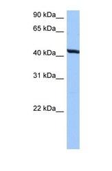 NBP1-60000 - TMEM118 / RNFT2