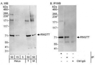 NBP1-49972 - RNGTT / HCE