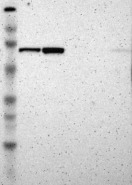 NBP1-83281 - RNGTT / HCE