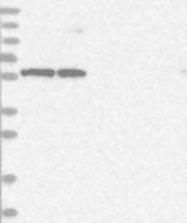 NBP1-80841 - RNMT