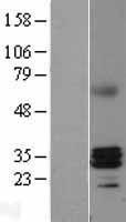 NBL1-15399 - RNase H1 Lysate