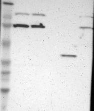 NBP1-87230 - RNASEL