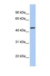 NBP1-59202 - Tetraspanin-23 (TSPAN23)