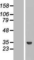 NBL1-15475 - ROM1 Lysate