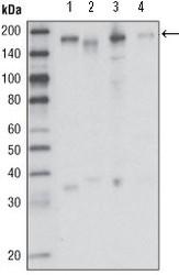 NBP1-47419 - CD136 / MST1R