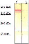 NBP1-73974 - CD136 / MST1R