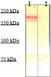 NBP1-73978 - CD136 / MST1R