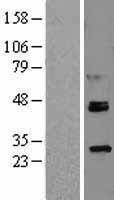 NBL1-15479 - ROR alpha Lysate