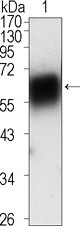 NBP1-47449 - ROR1