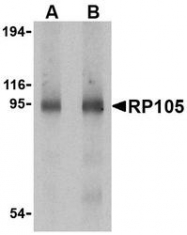 NBP1-76705 - CD180 / RP105
