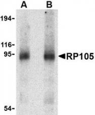 NBP1-76707 - CD180 / RP105