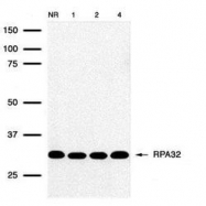 NB100-158 - RPA2