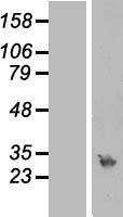 NBL1-15491 - RPA4 Lysate