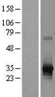 NBL1-15498 - RPIA Lysate