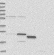 NBP1-92345 - RPL13A