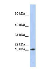 NBP1-52873 - RPL30