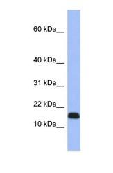NBP1-55204 - RPL37A