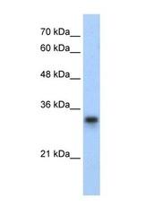 NBP1-57479 - RPL8