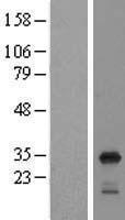 NBL1-15546 - RPL8 Lysate