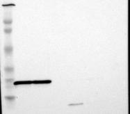 NBP1-82853 - RPL9