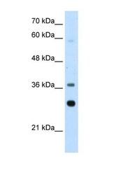 NBP1-57528 - RPLP0