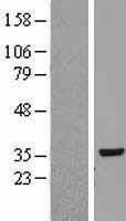 NBL1-15549 - RPLP0 Lysate