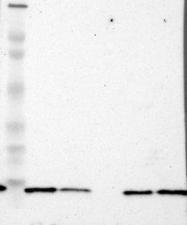NBP1-81293 - RPLP1 / RRP1