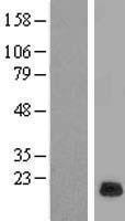 NBL1-15553 - RPP21 Lysate
