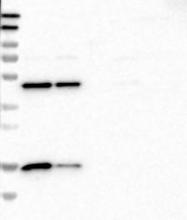 NBP1-84847 - RPS14