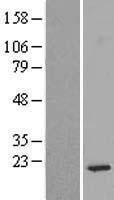 NBL1-15559 - RPS14 Lysate