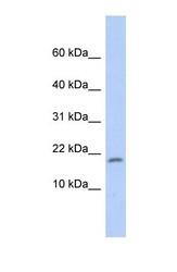 NBP1-55205 - RPS15 / RIG