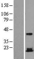 NBL1-15563 - RPS18 Lysate