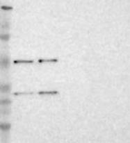 NBP1-82761 - RPS4Y1 / RPS4Y