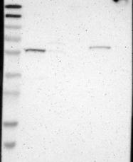 NBP1-87805 - RPS6KB2 / STK14B