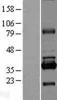 NBL1-15580 - RPUSD1 Lysate