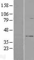 NBL1-15582 - RPUSD3 Lysate