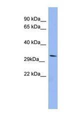 NBP1-58864 - RRAD / RAD