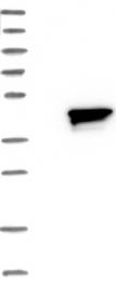 NBP1-85801 - RRAGB / Rag B