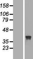 NBL1-15586 - RRAGB Lysate