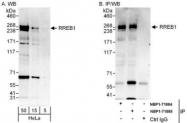 NBP1-71885 - RREB1