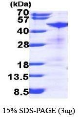 NBP1-44468 - RRM2 / RR2