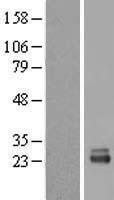 NBL1-15589 - RRP1 Lysate