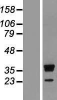 NBL1-15591 - RRP15 Lysate