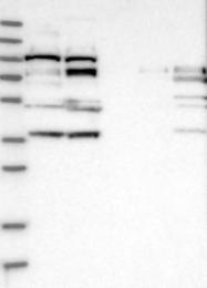 NBP1-81534 - RRP1B