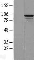 NBL1-15597 - RSBN1L Lysate