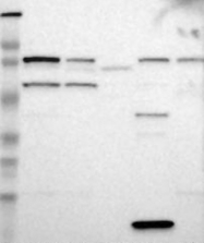NBP1-87107 - RPS6KA6 / RSK4