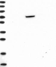 NBP1-84244 - RSPH3