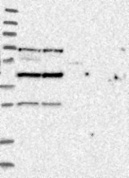 NBP1-86750 - RSPH9 / C6orf206